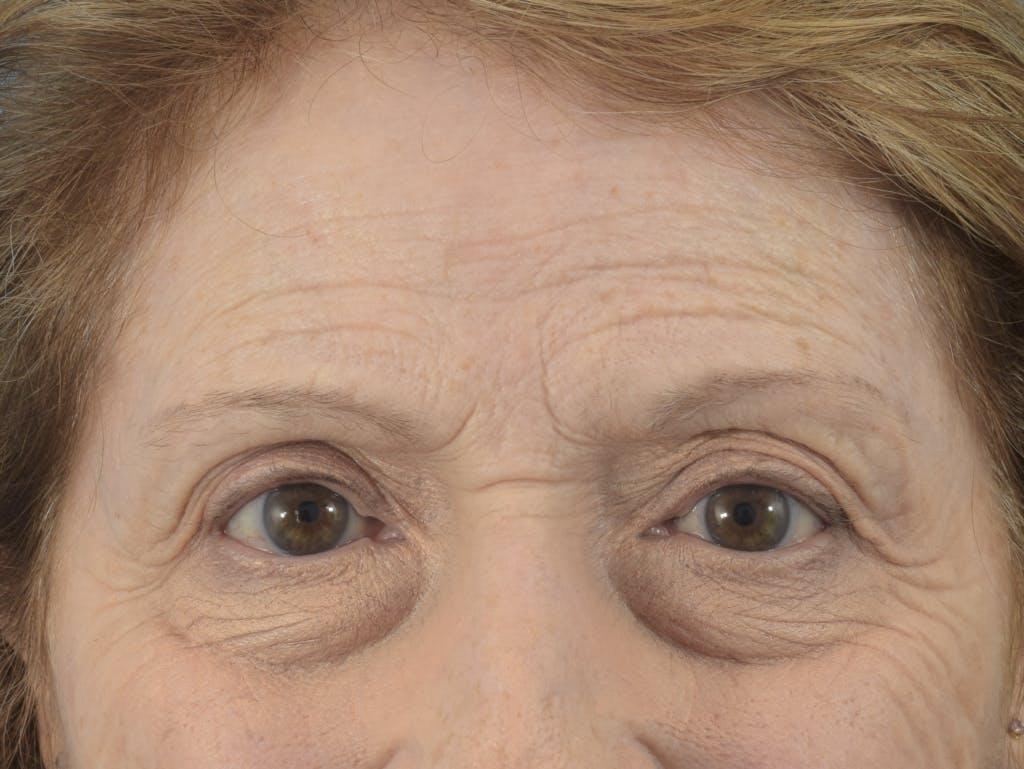 Neuromodulators (Botox, Dysport...) Gallery - Patient 36543204 - Image 1