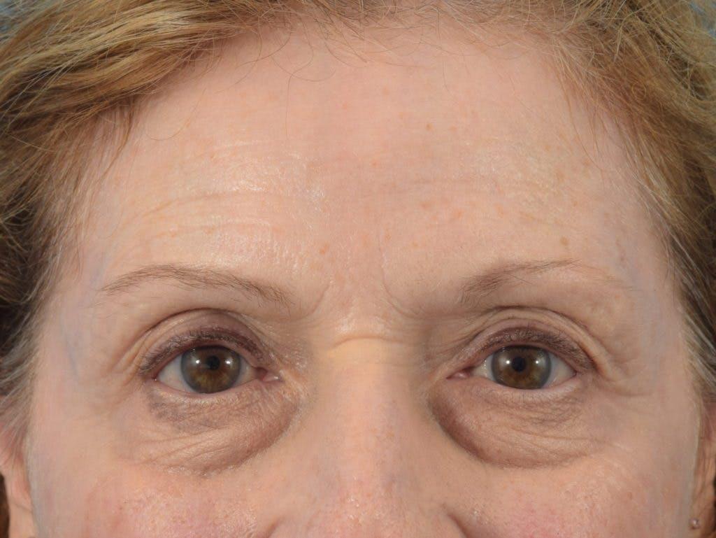 Neuromodulators (Botox, Dysport...) Gallery - Patient 36543204 - Image 2