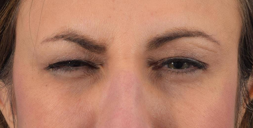 Neuromodulators (Botox, Dysport...) Gallery - Patient 36543206 - Image 2