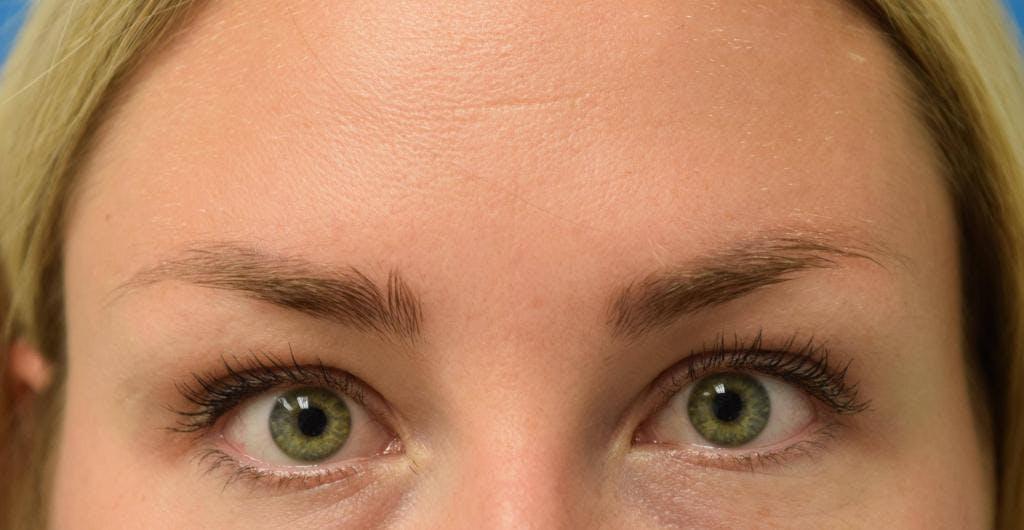 Neuromodulators (Botox, Dysport...) Gallery - Patient 36543207 - Image 2