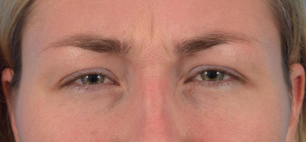 Neuromodulators (Botox, Dysport...) Gallery - Patient 36543207 - Image 3