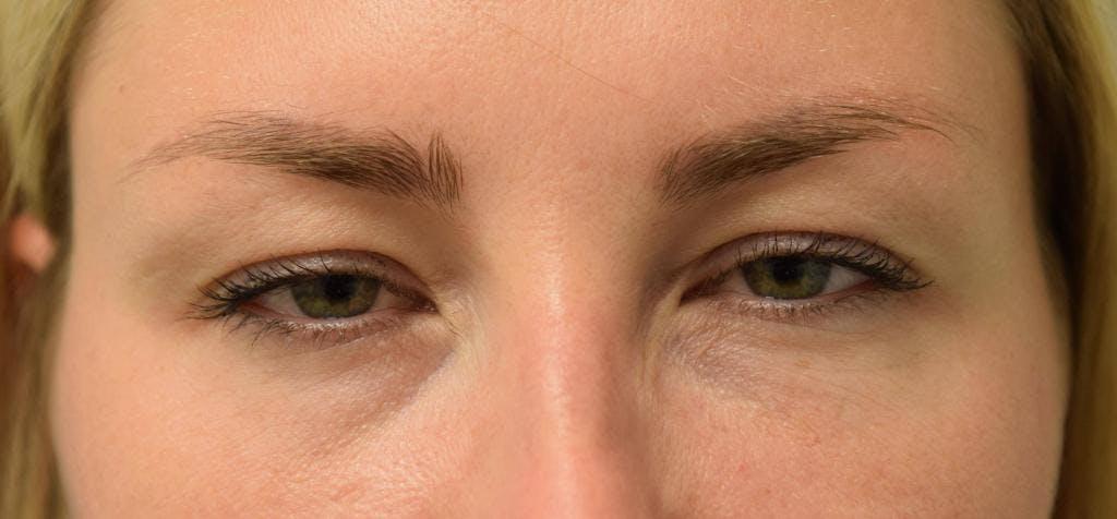 Neuromodulators (Botox, Dysport...) Gallery - Patient 36543207 - Image 4