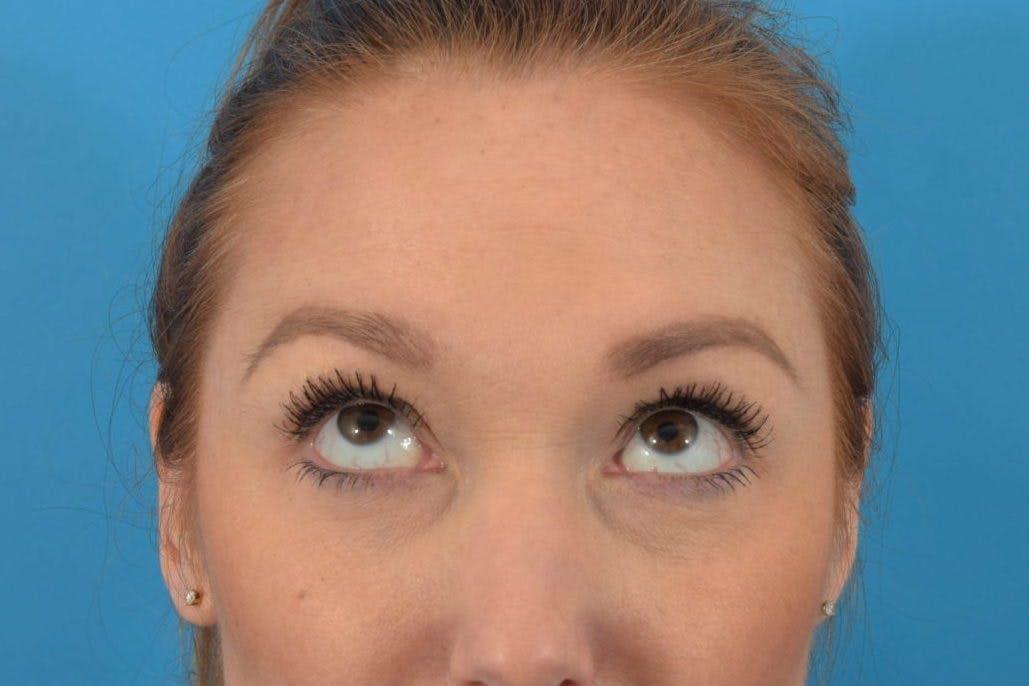 Neuromodulators (Botox, Dysport...) Gallery - Patient 36543215 - Image 2