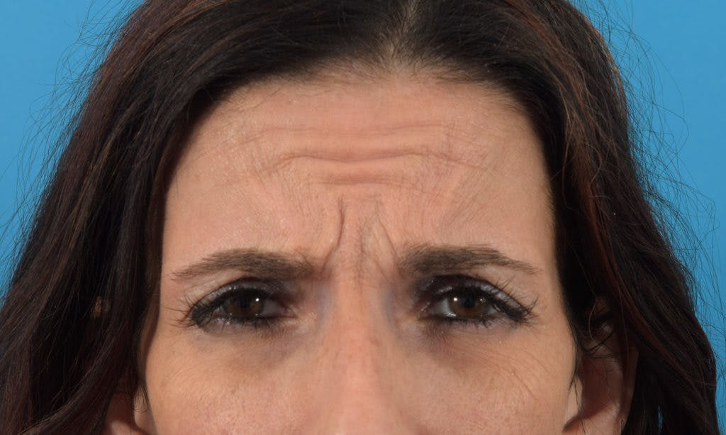 Neuromodulators (Botox, Dysport...) Gallery - Patient 36543214 - Image 3