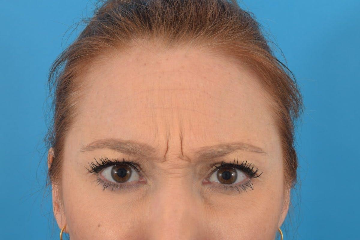 Neuromodulators (Botox, Dysport...) Gallery - Patient 36543215 - Image 3