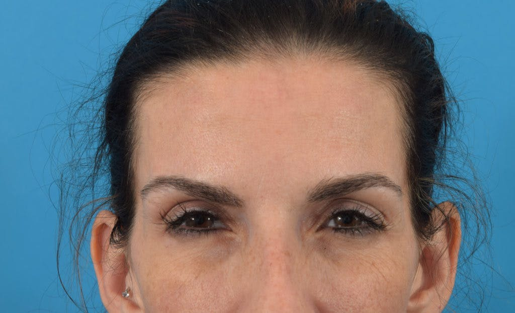 Neuromodulators (Botox, Dysport...) Gallery - Patient 36543214 - Image 4