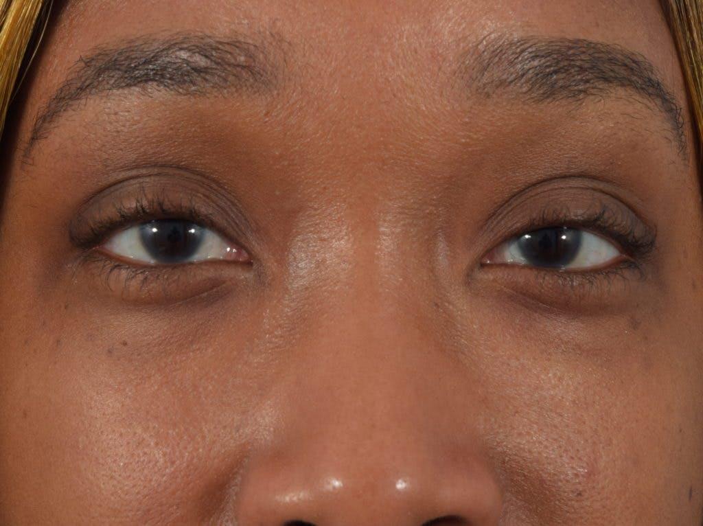 Filler-Tear Trough Gallery - Patient 36543217 - Image 2