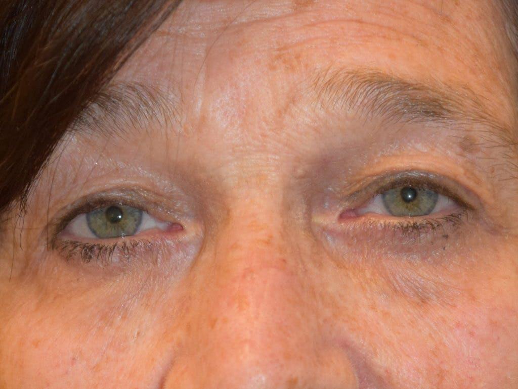 Filler-Tear Trough Gallery - Patient 36543218 - Image 2
