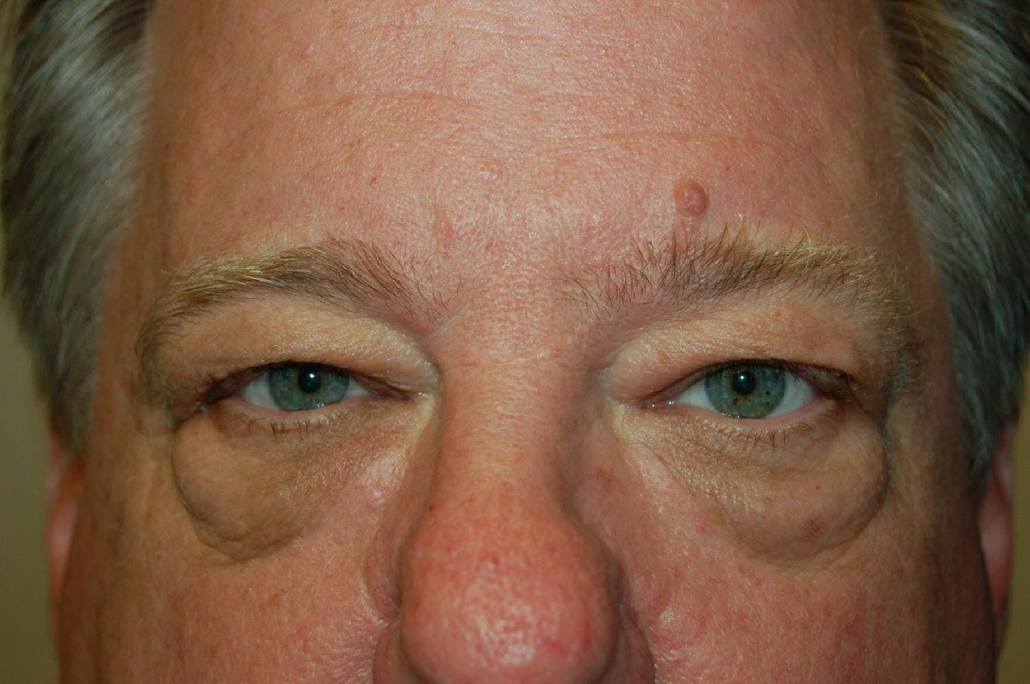 Mole Removal Gallery - Patient 36543228 - Image 1