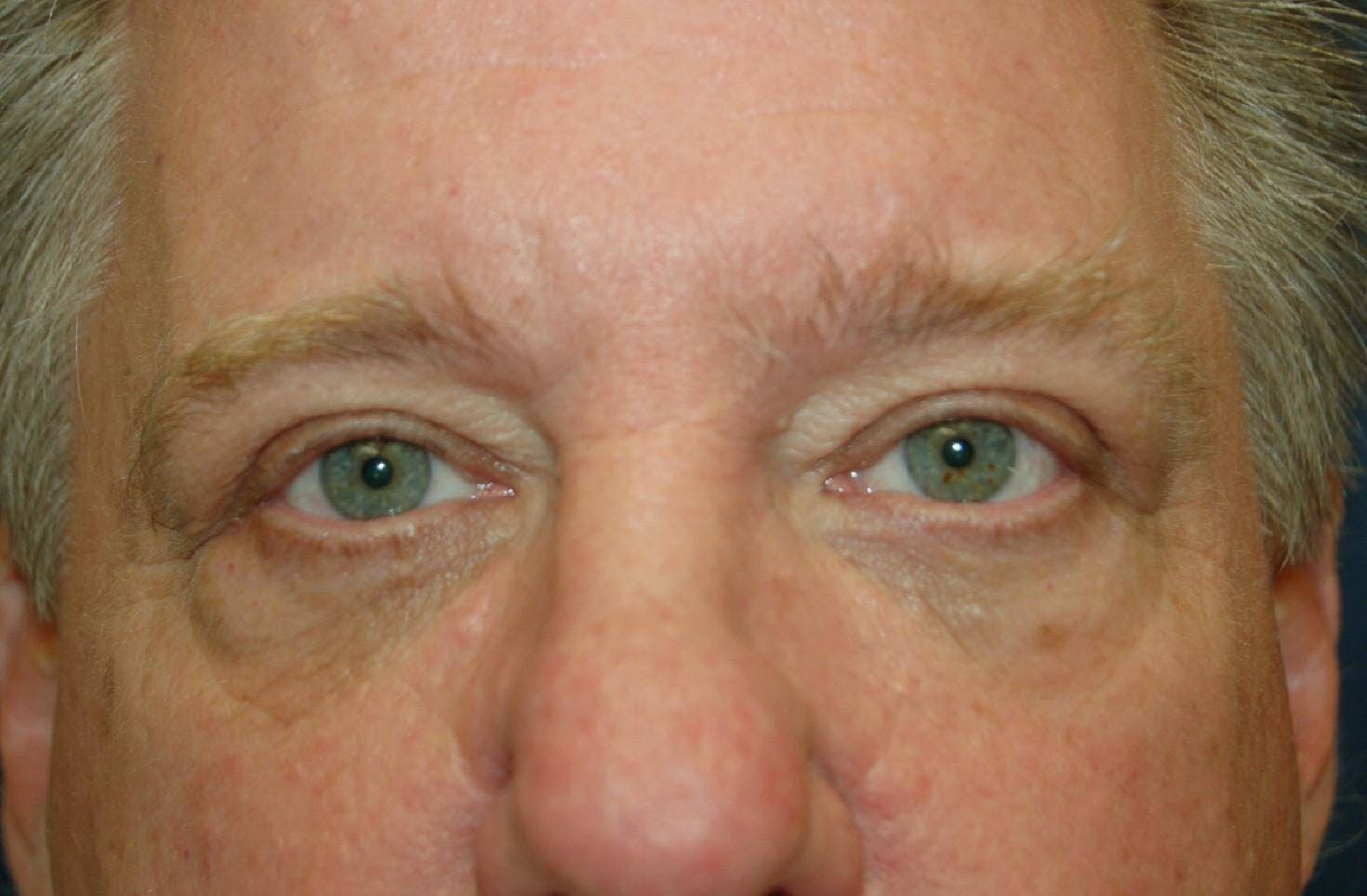 Mole Removal Gallery - Patient 36543228 - Image 2