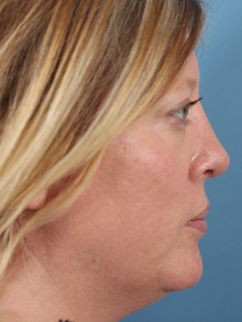 Rhinoplasty Gallery - Patient 36550405 - Image 2
