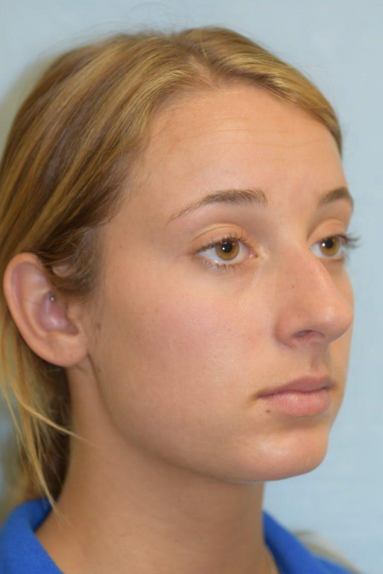 Rhinoplasty Gallery - Patient 36550410 - Image 1