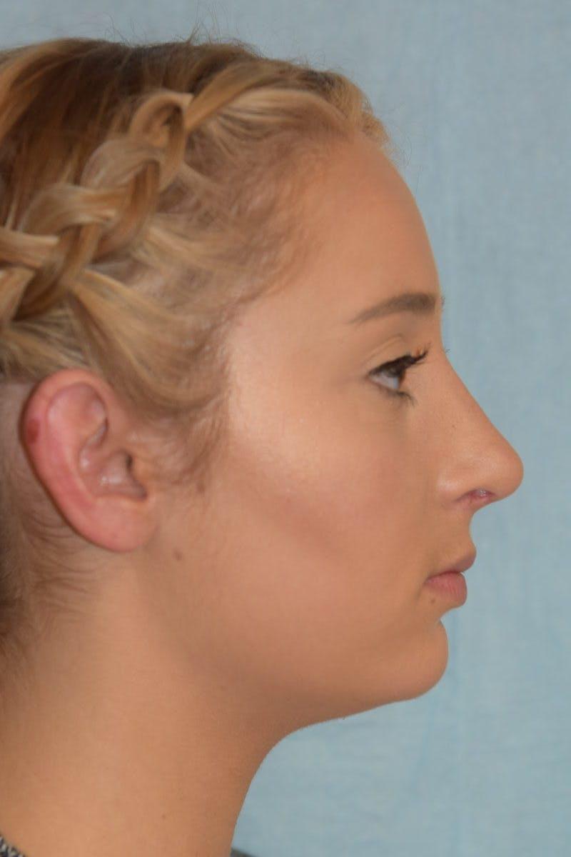 Rhinoplasty Gallery - Patient 36550410 - Image 4