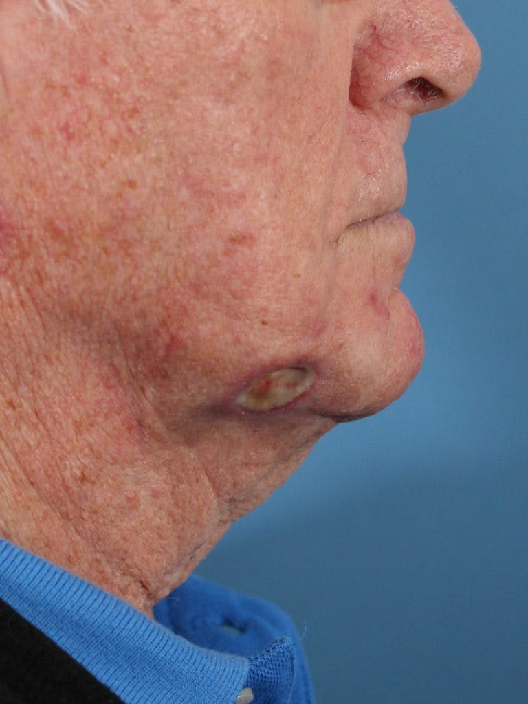 Skin Reconstruction Gallery - Patient 36550466 - Image 3
