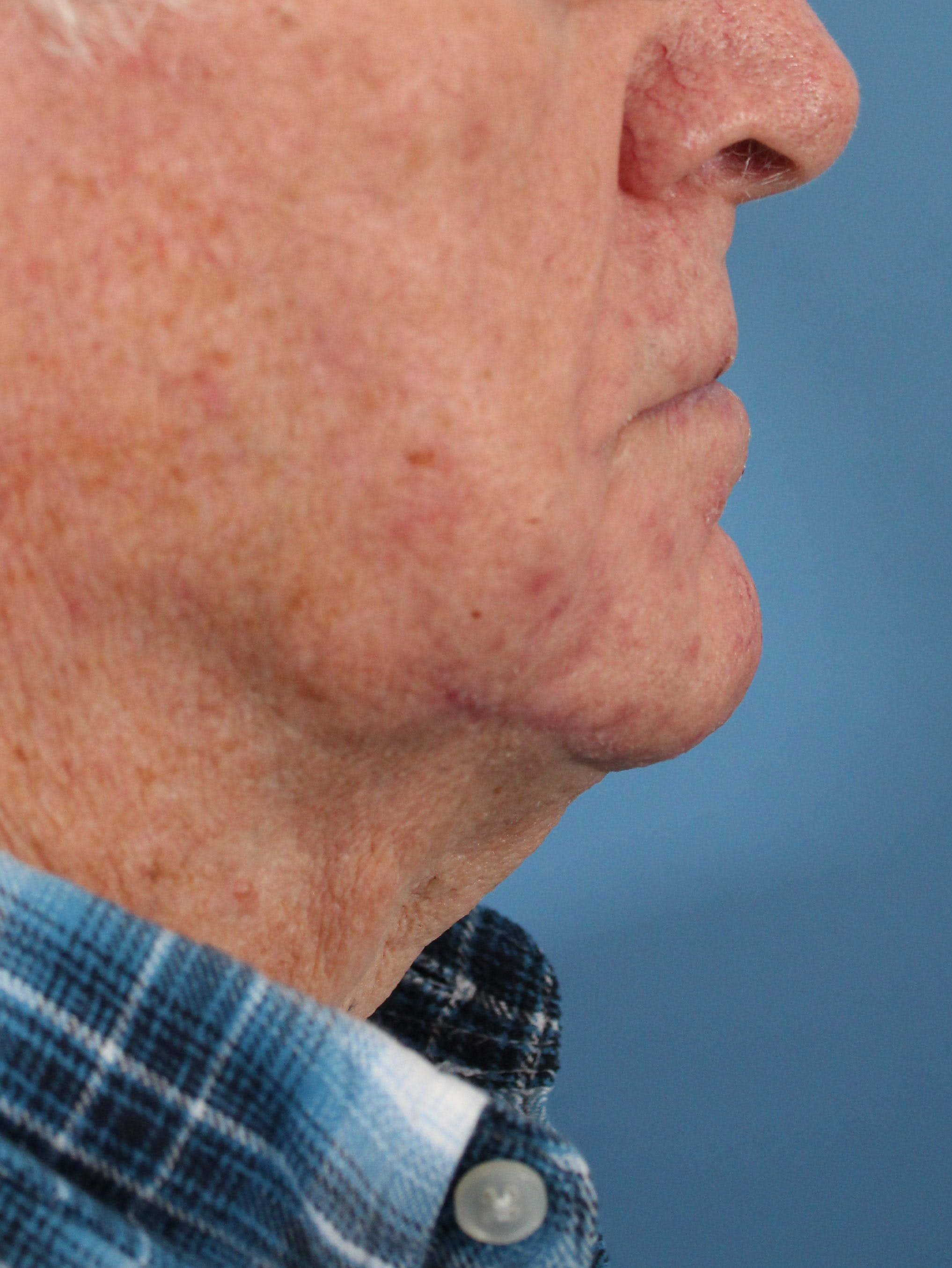Skin Reconstruction Gallery - Patient 36550466 - Image 4