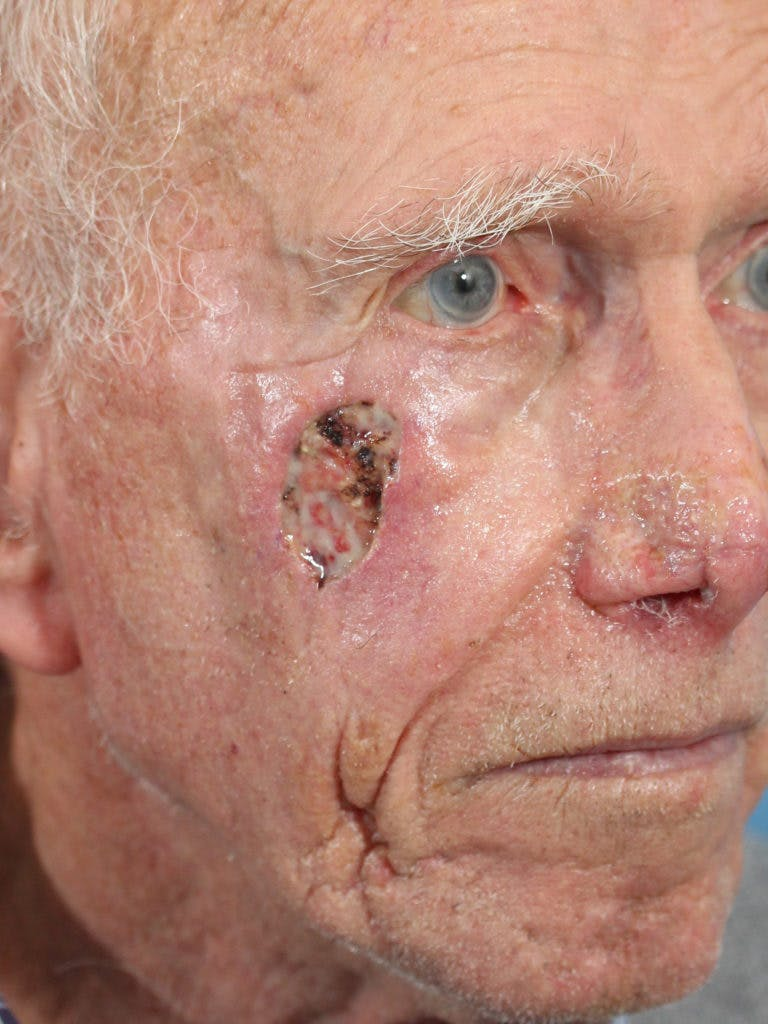 Skin Reconstruction Gallery - Patient 36550468 - Image 1