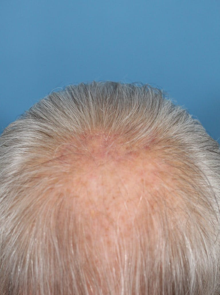 Skin Reconstruction Gallery - Patient 36550467 - Image 2