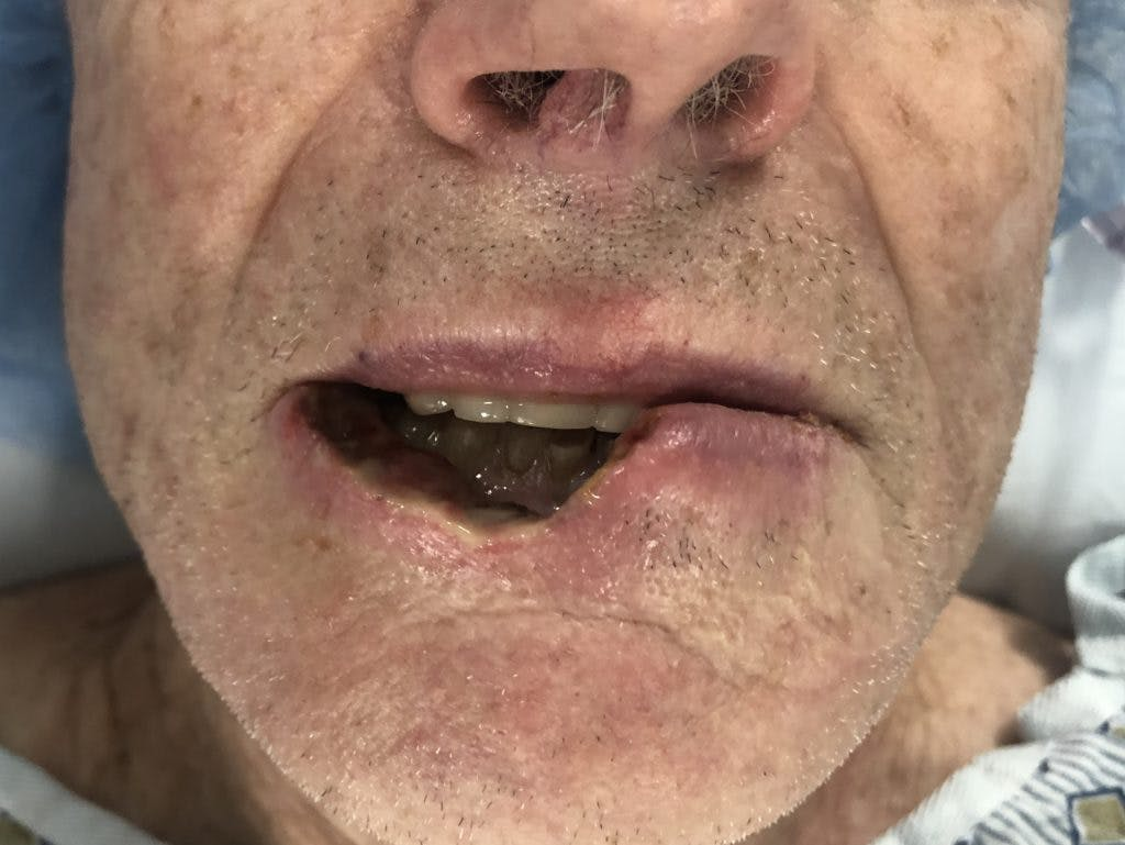 Skin Reconstruction Gallery - Patient 36550469 - Image 1