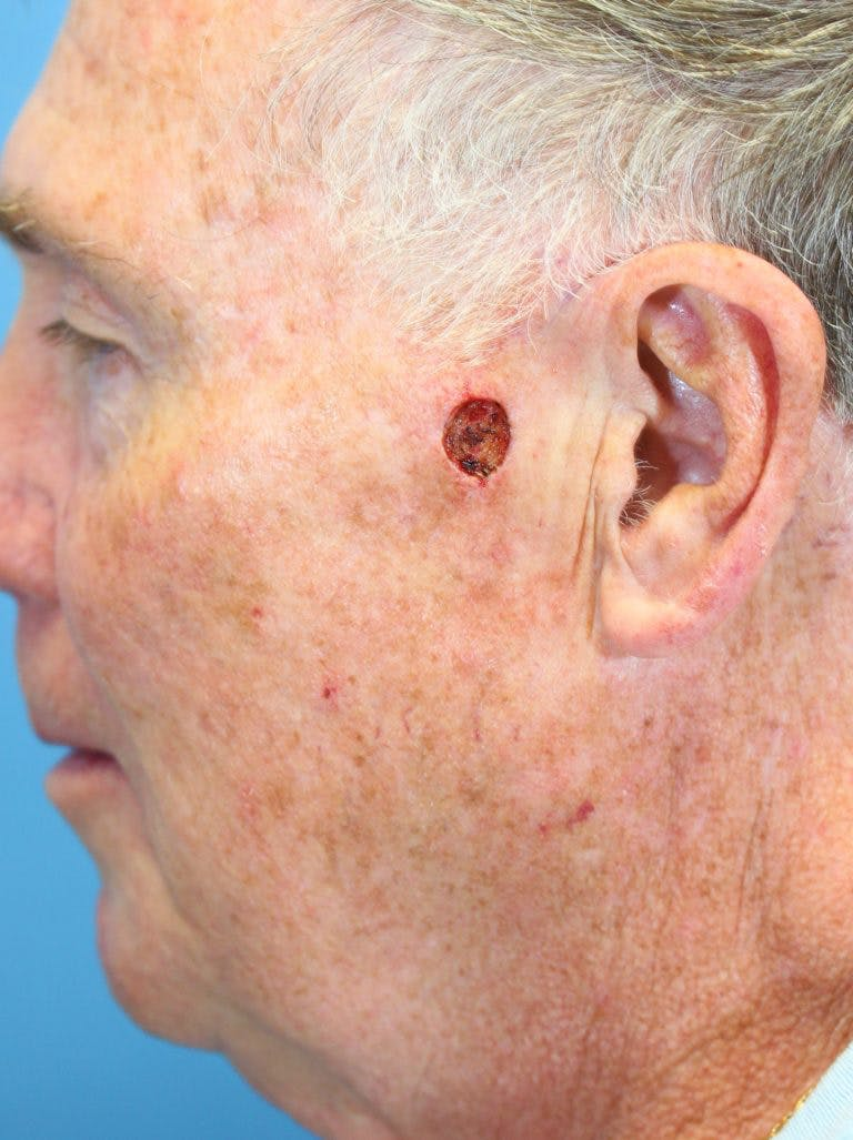 Skin Reconstruction Gallery - Patient 36550471 - Image 1