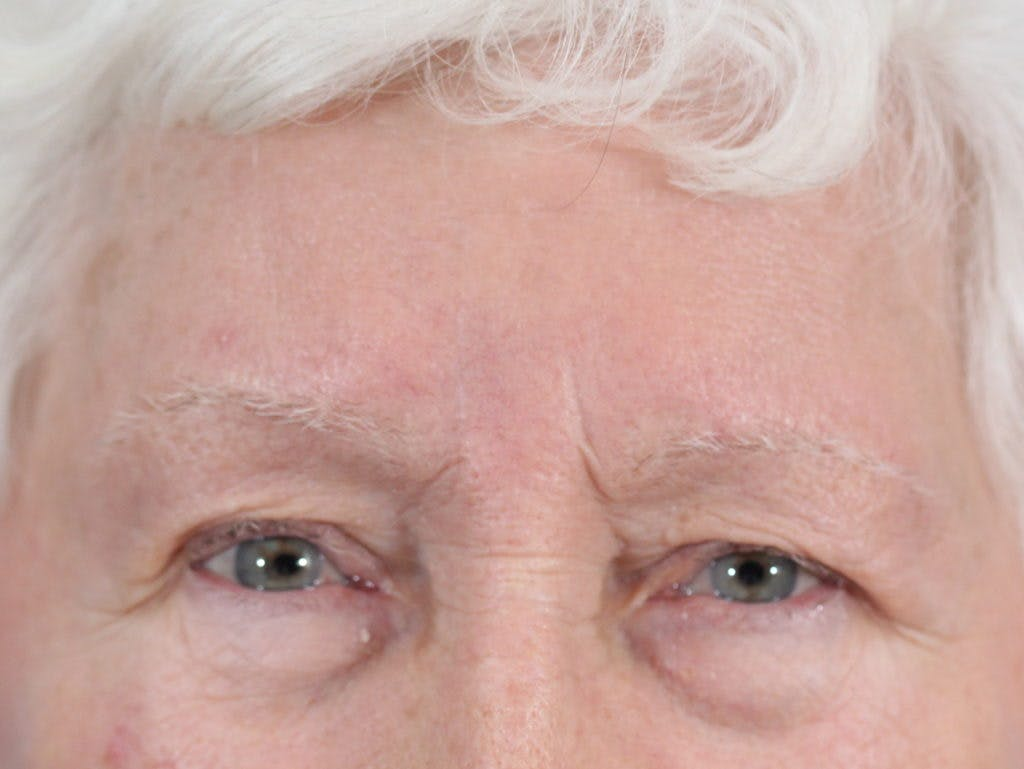 Skin Reconstruction Gallery - Patient 36550470 - Image 2