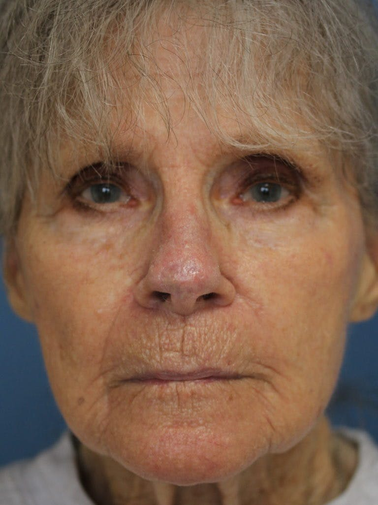 Skin Reconstruction Gallery - Patient 36550472 - Image 2