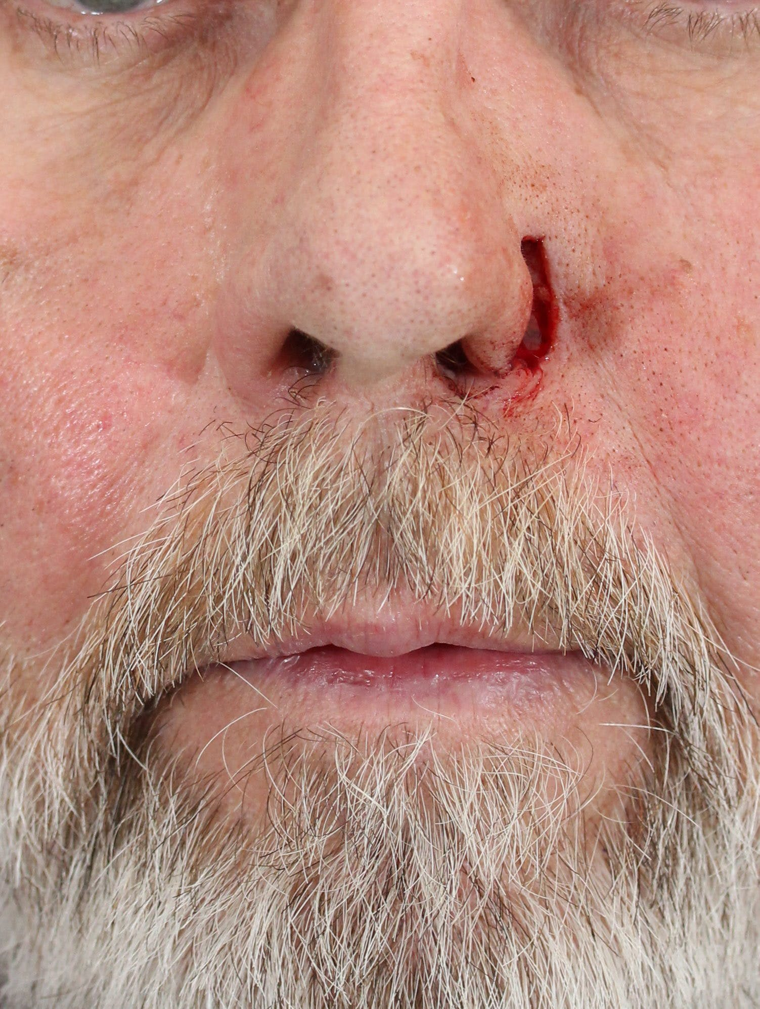 Skin Reconstruction Gallery - Patient 36550473 - Image 1