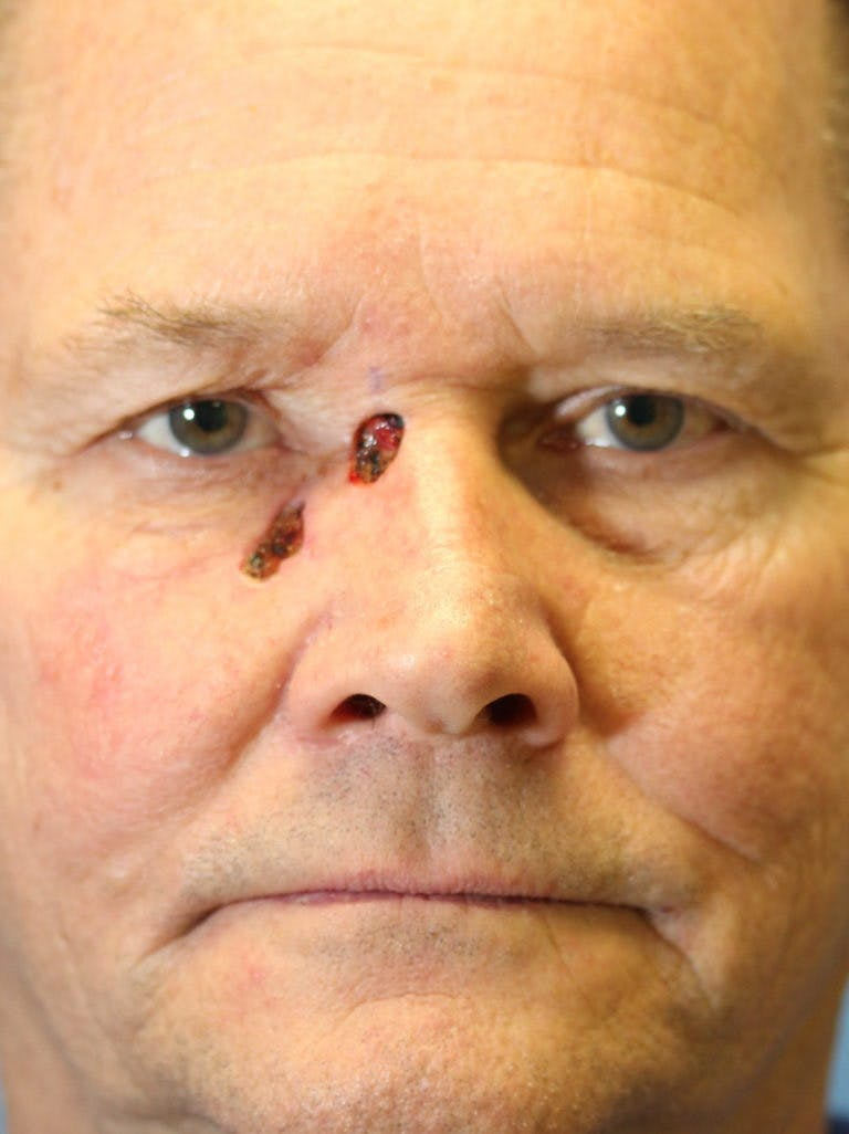 Skin Reconstruction Gallery - Patient 36550475 - Image 1