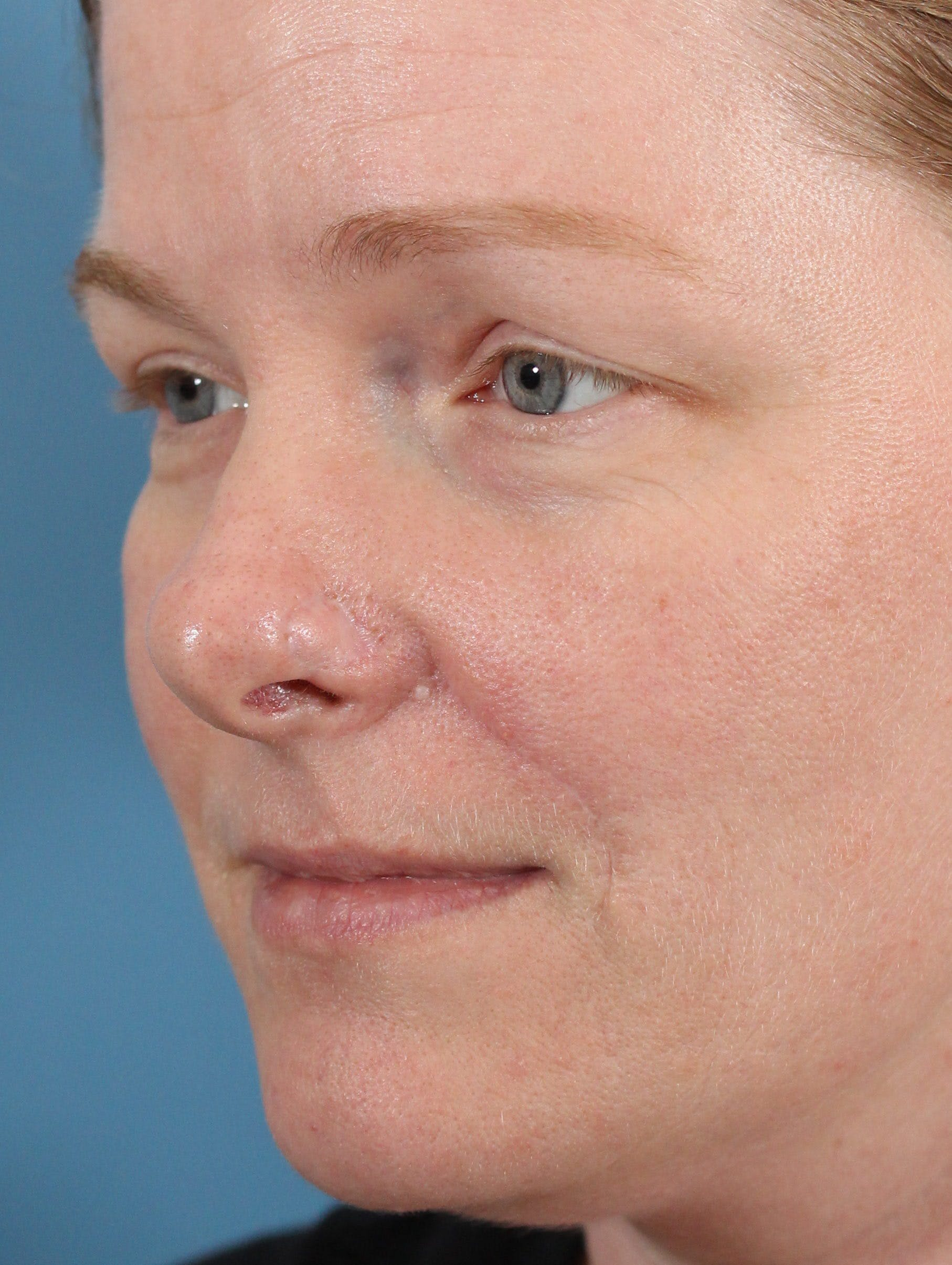 Skin Reconstruction Gallery - Patient 36550474 - Image 2