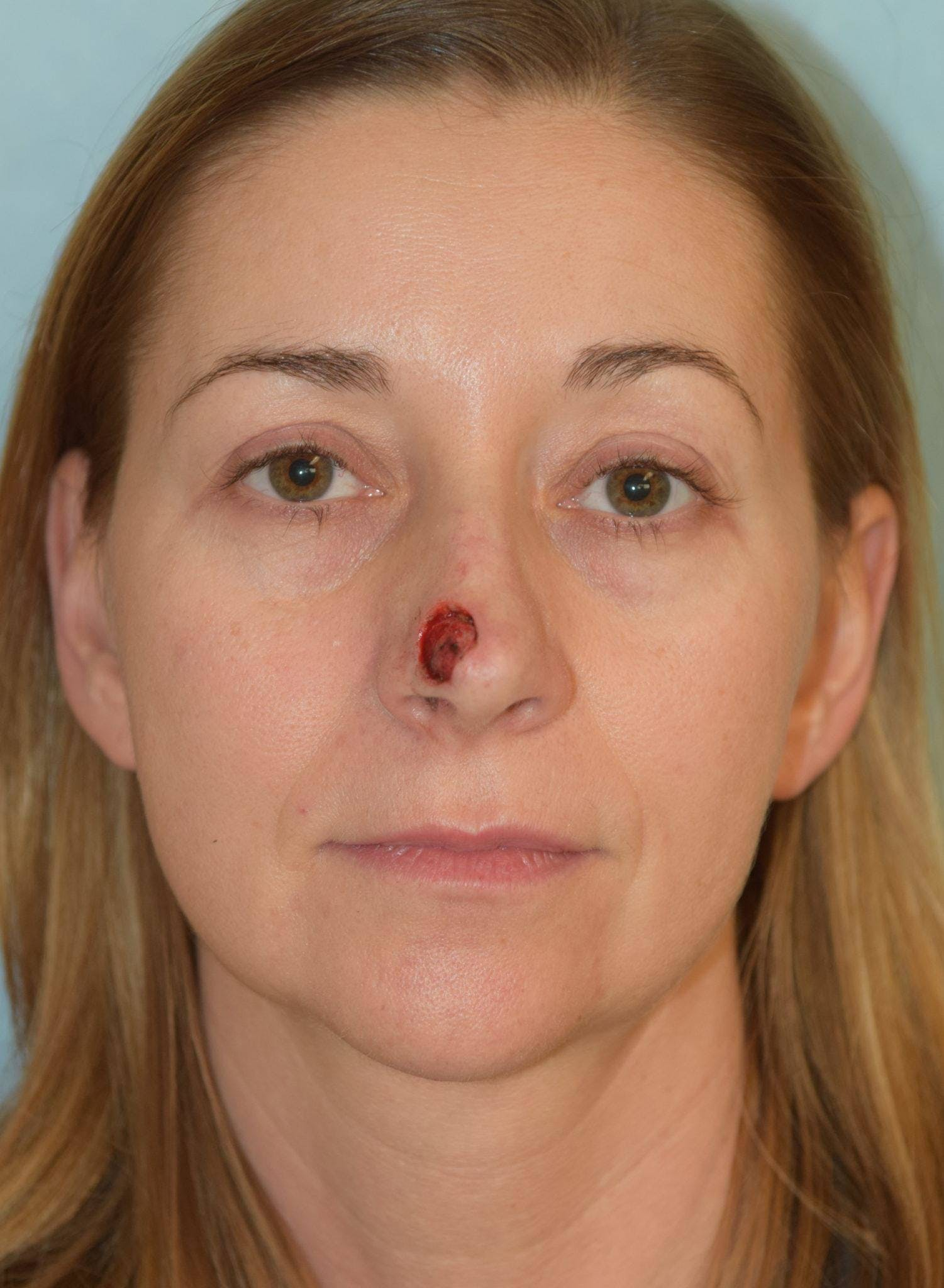 Skin Reconstruction Gallery - Patient 36550476 - Image 1