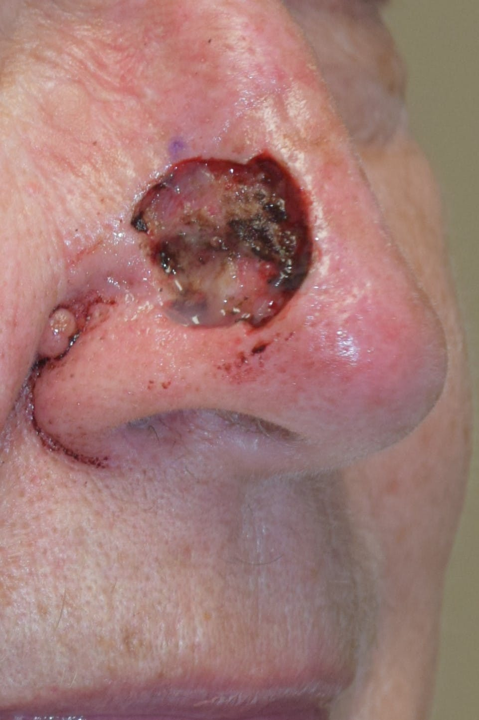 Skin Reconstruction Gallery - Patient 36550477 - Image 1
