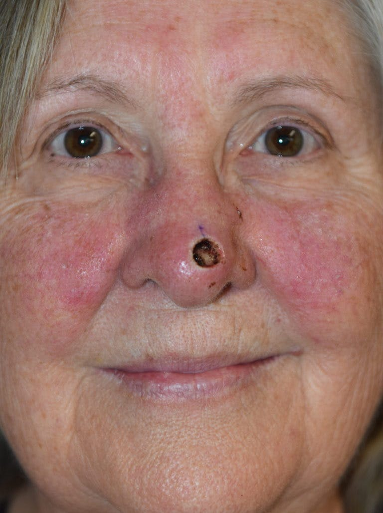 Skin Reconstruction Gallery - Patient 36550478 - Image 1
