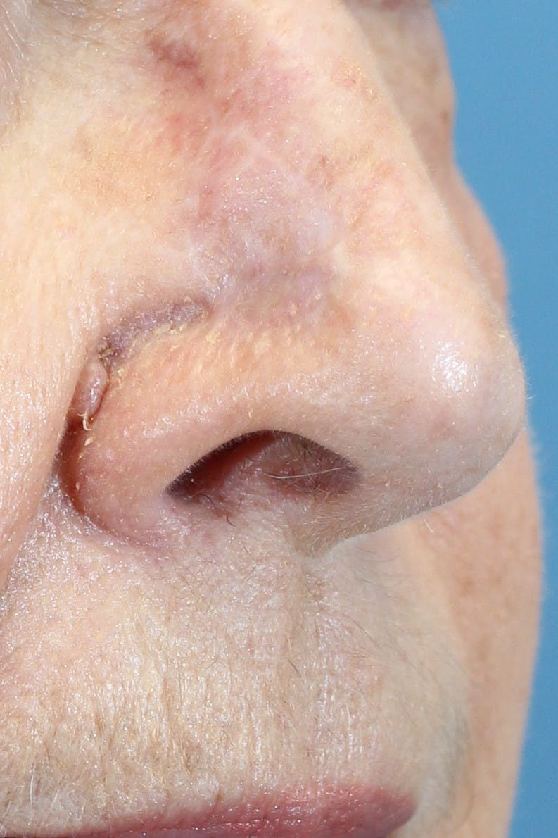 Skin Reconstruction Gallery - Patient 36550477 - Image 2