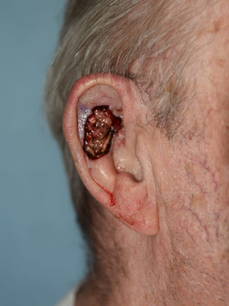 Skin Reconstruction Gallery - Patient 36550479 - Image 1