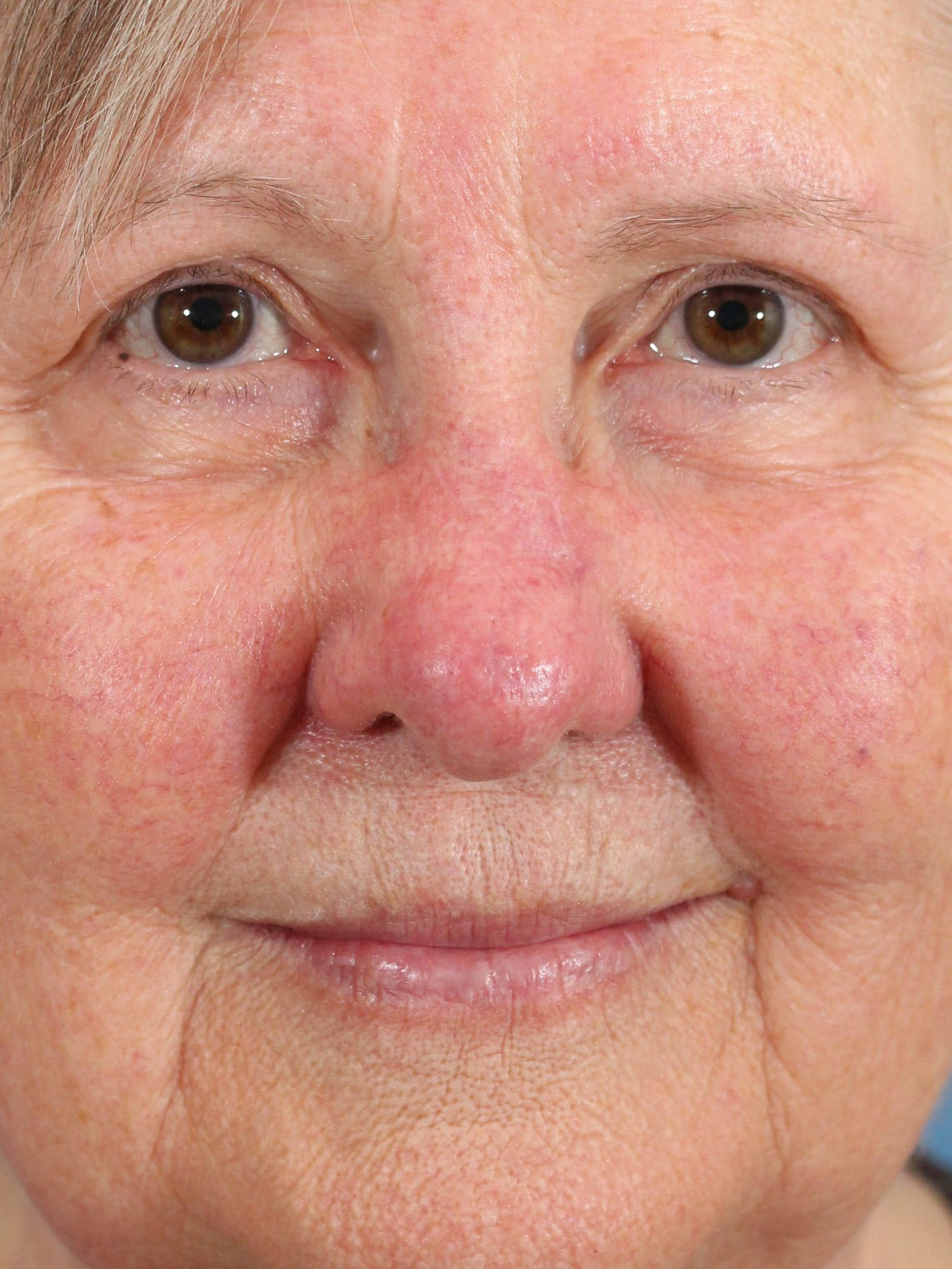 Skin Reconstruction Gallery - Patient 36550478 - Image 2