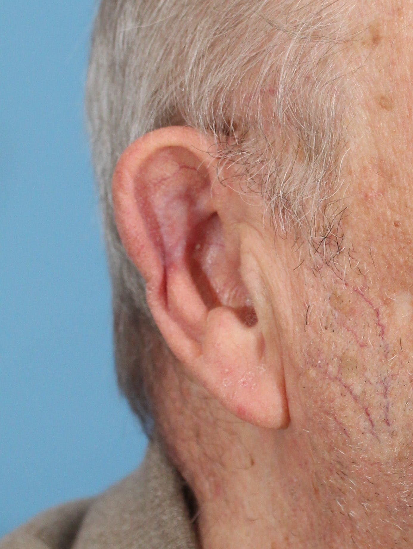 Skin Reconstruction Gallery - Patient 36550479 - Image 2
