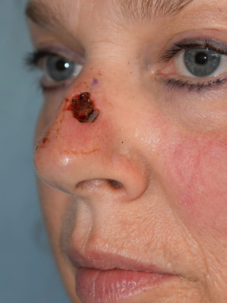 Skin Reconstruction Gallery - Patient 36550482 - Image 1