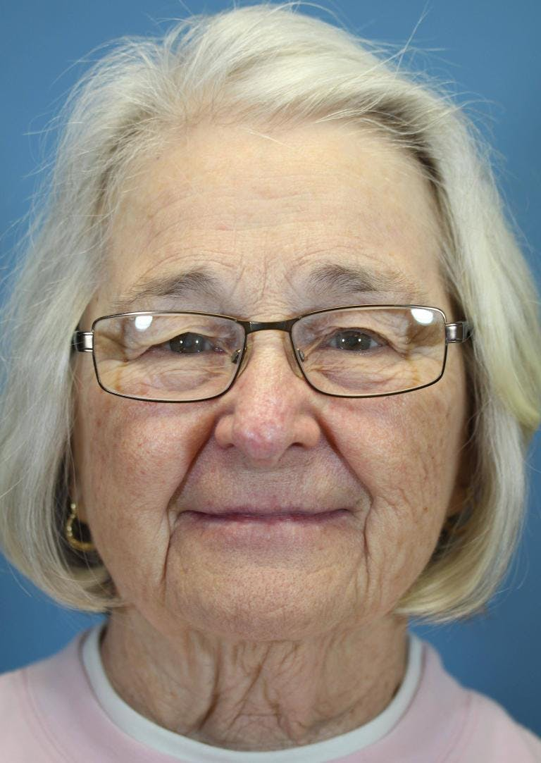 Skin Reconstruction Gallery - Patient 36550480 - Image 2