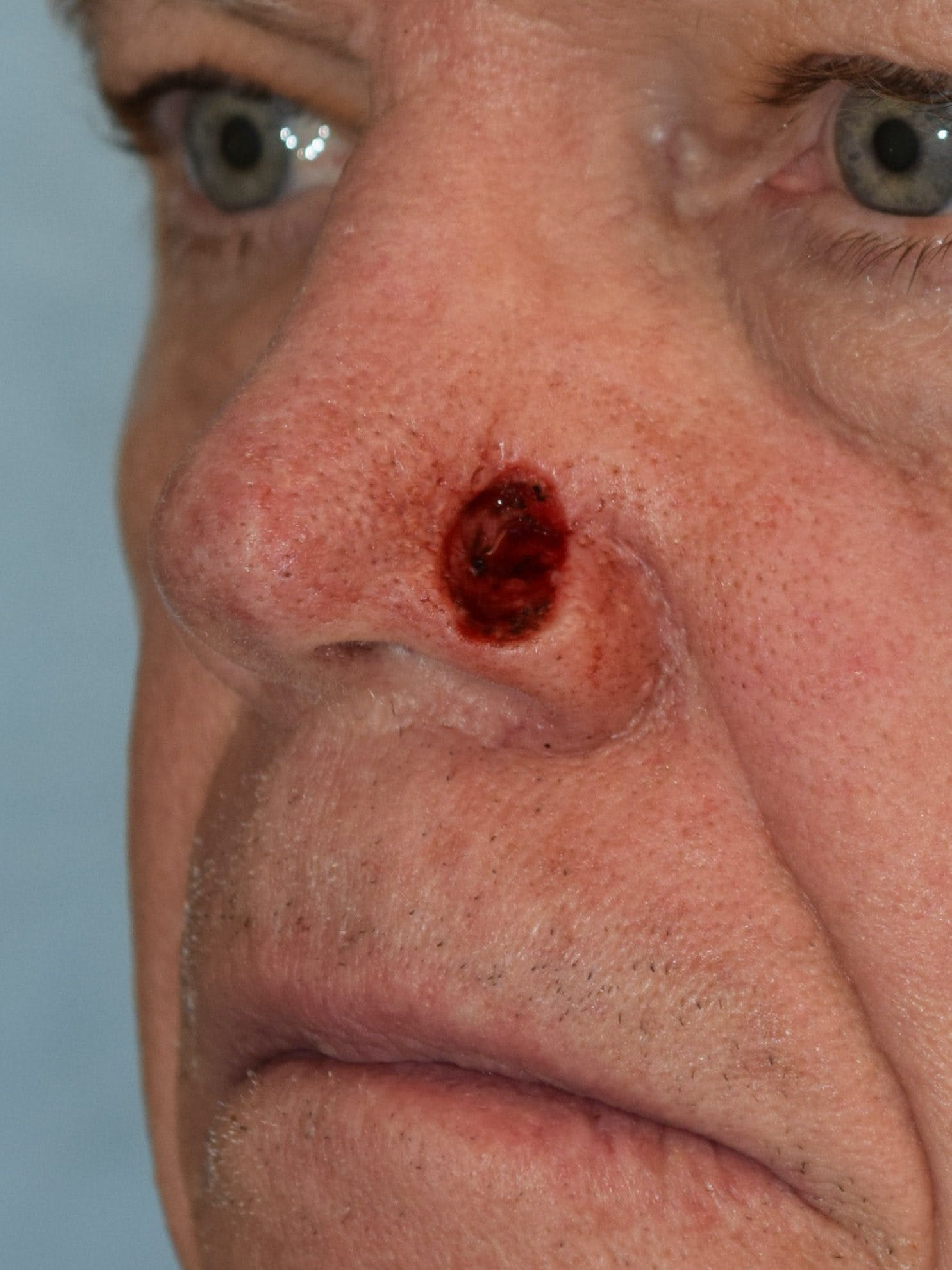 Skin Reconstruction Gallery - Patient 36550483 - Image 1