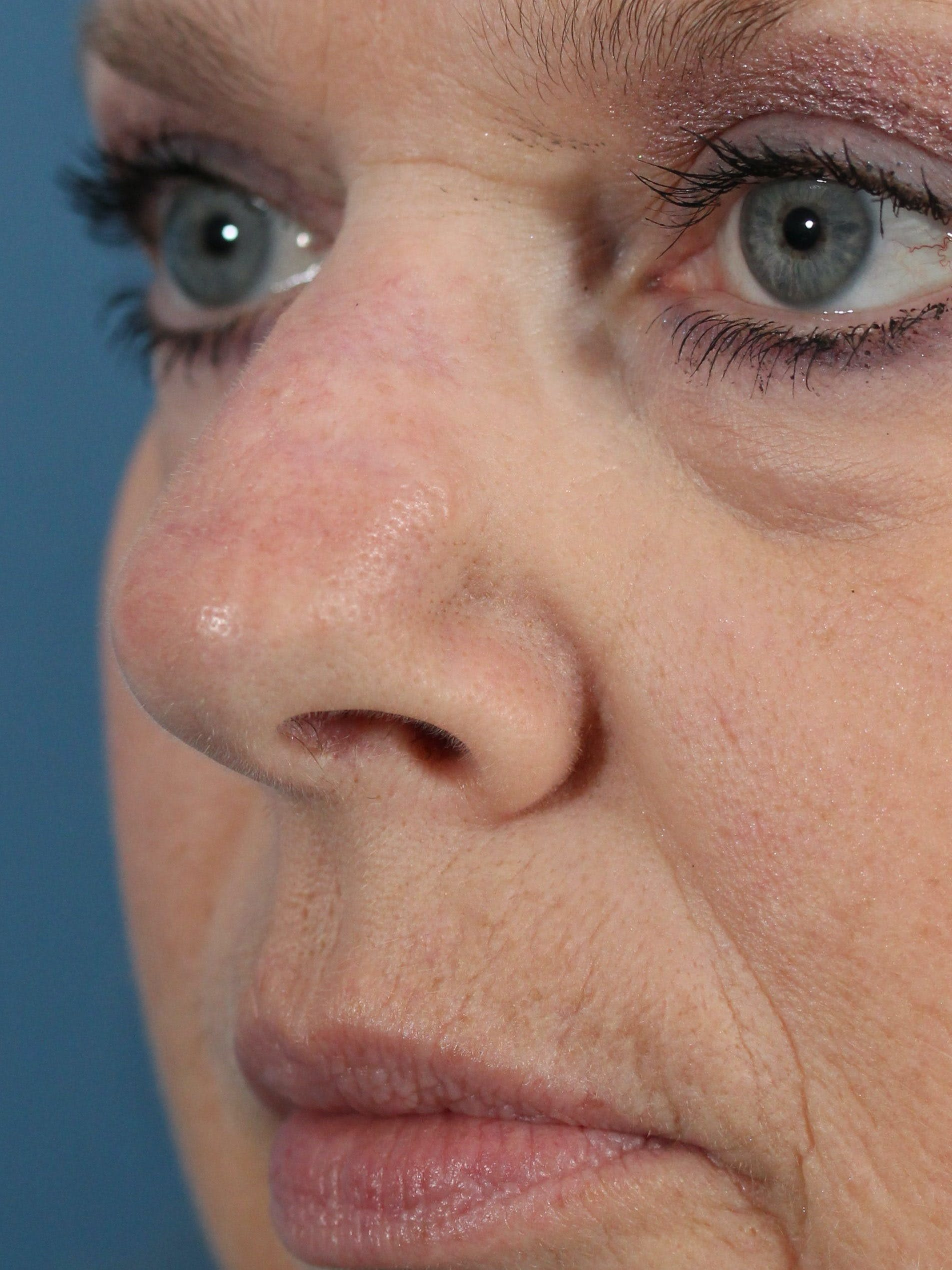 Skin Reconstruction Gallery - Patient 36550482 - Image 2