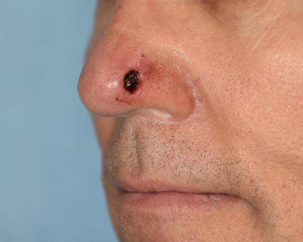 Skin Reconstruction Gallery - Patient 36550484 - Image 1