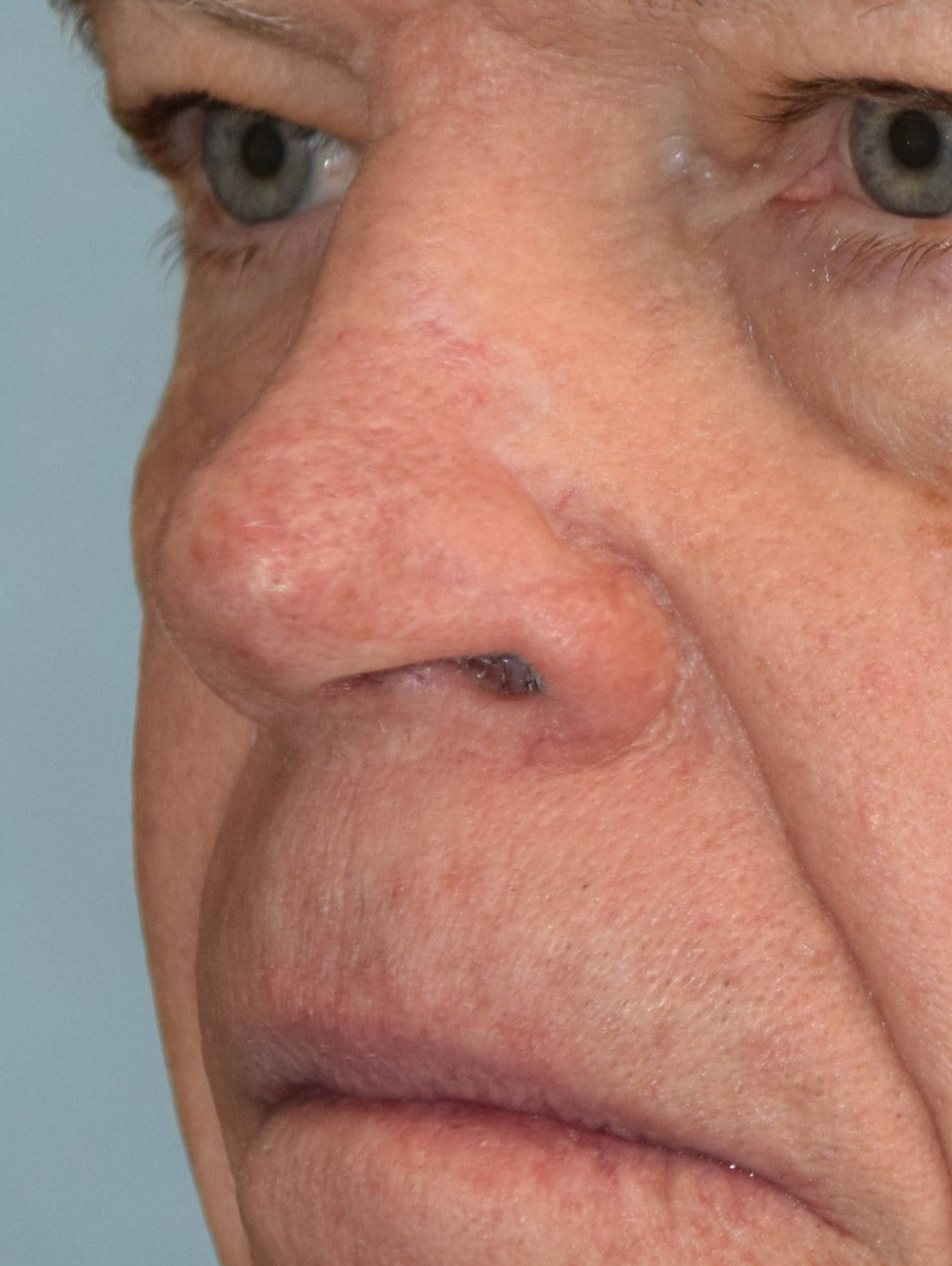 Skin Reconstruction Gallery - Patient 36550483 - Image 2