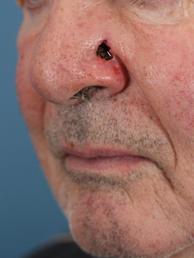 Skin Reconstruction Gallery - Patient 36550485 - Image 1
