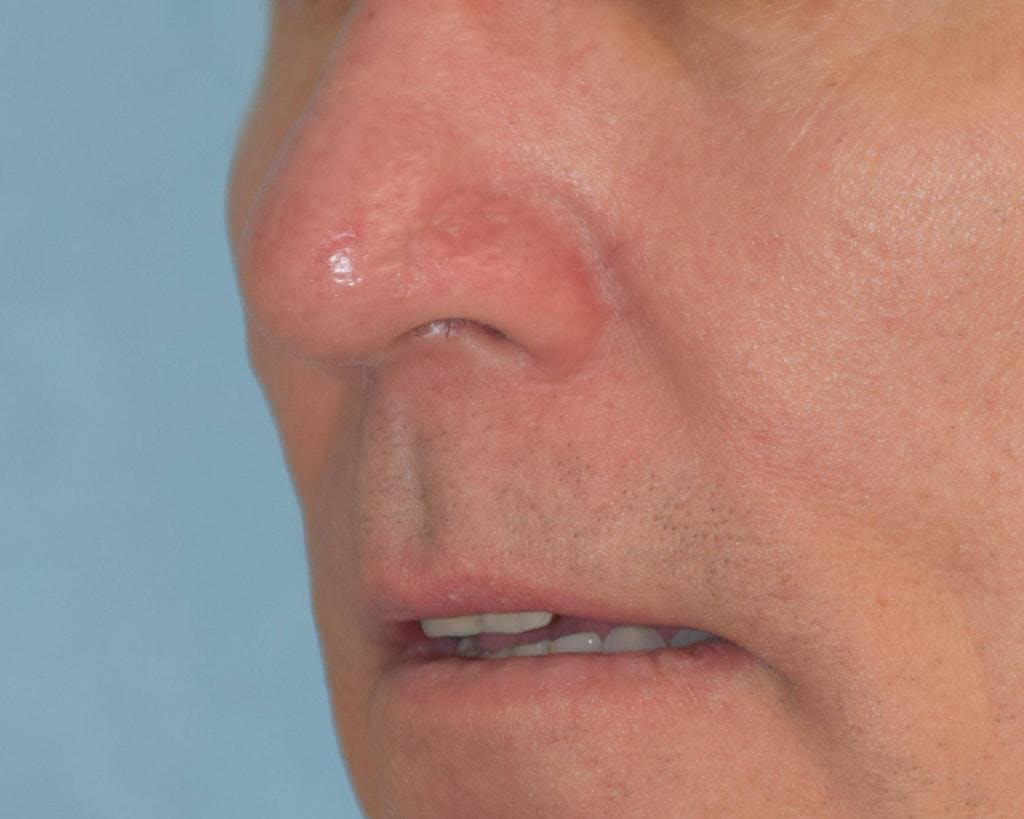 Skin Reconstruction Gallery - Patient 36550484 - Image 2