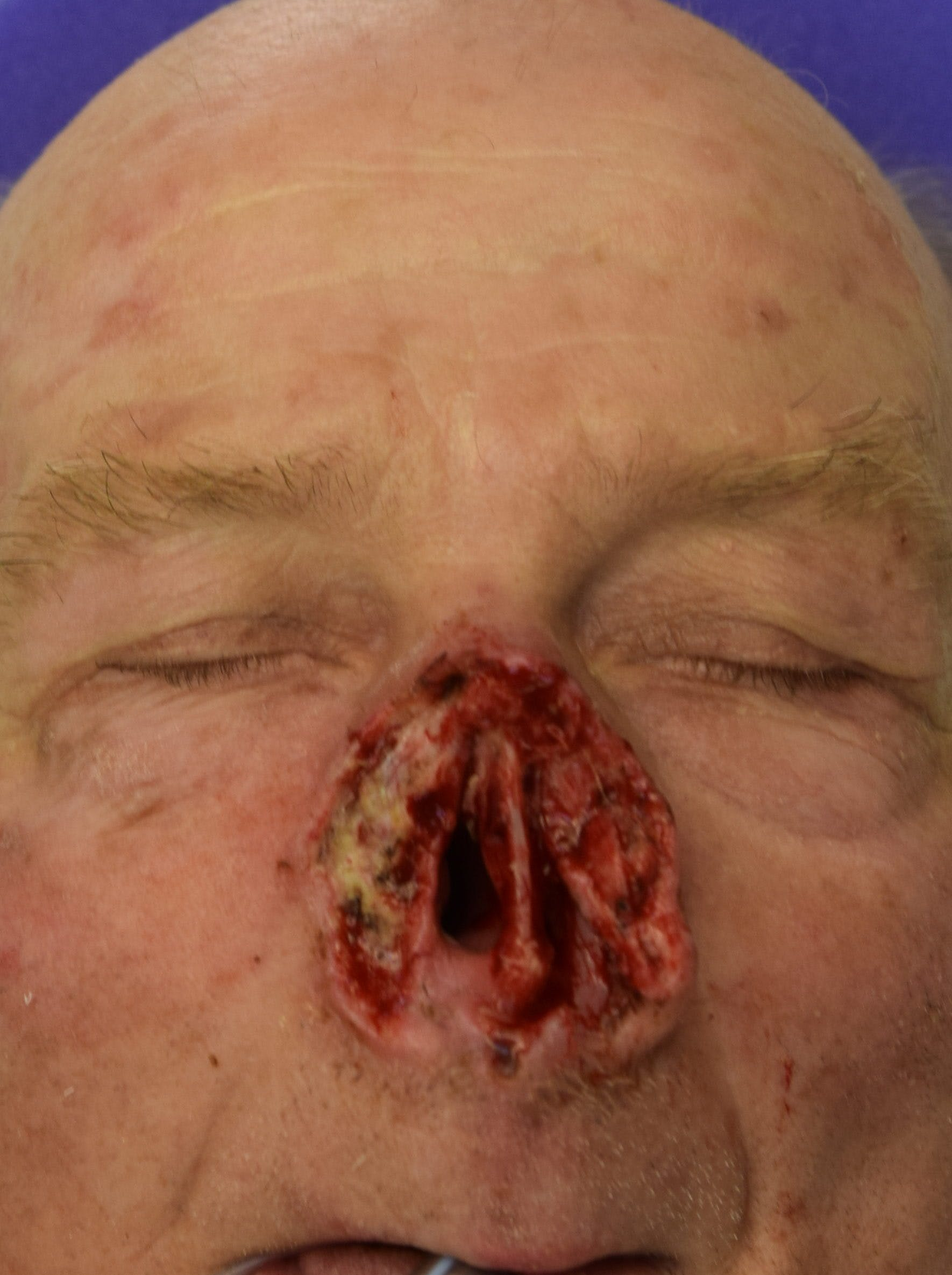 Skin Reconstruction Gallery - Patient 36550486 - Image 1