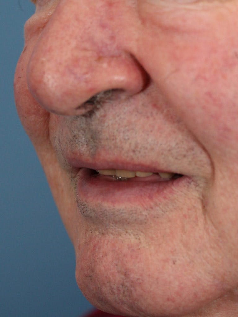 Skin Reconstruction Gallery - Patient 36550485 - Image 2