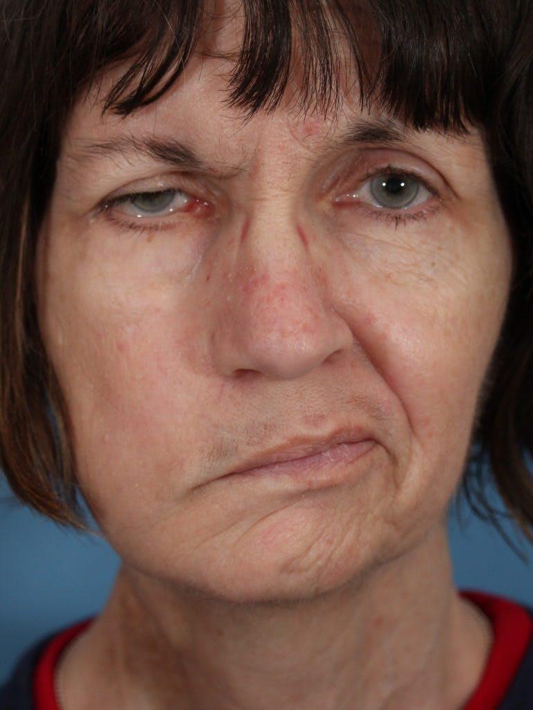 Facial Paralysis Gallery - Patient 36550521 - Image 1