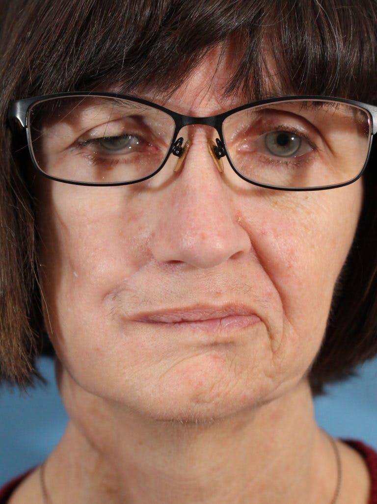 Facial Paralysis Gallery - Patient 36550521 - Image 2
