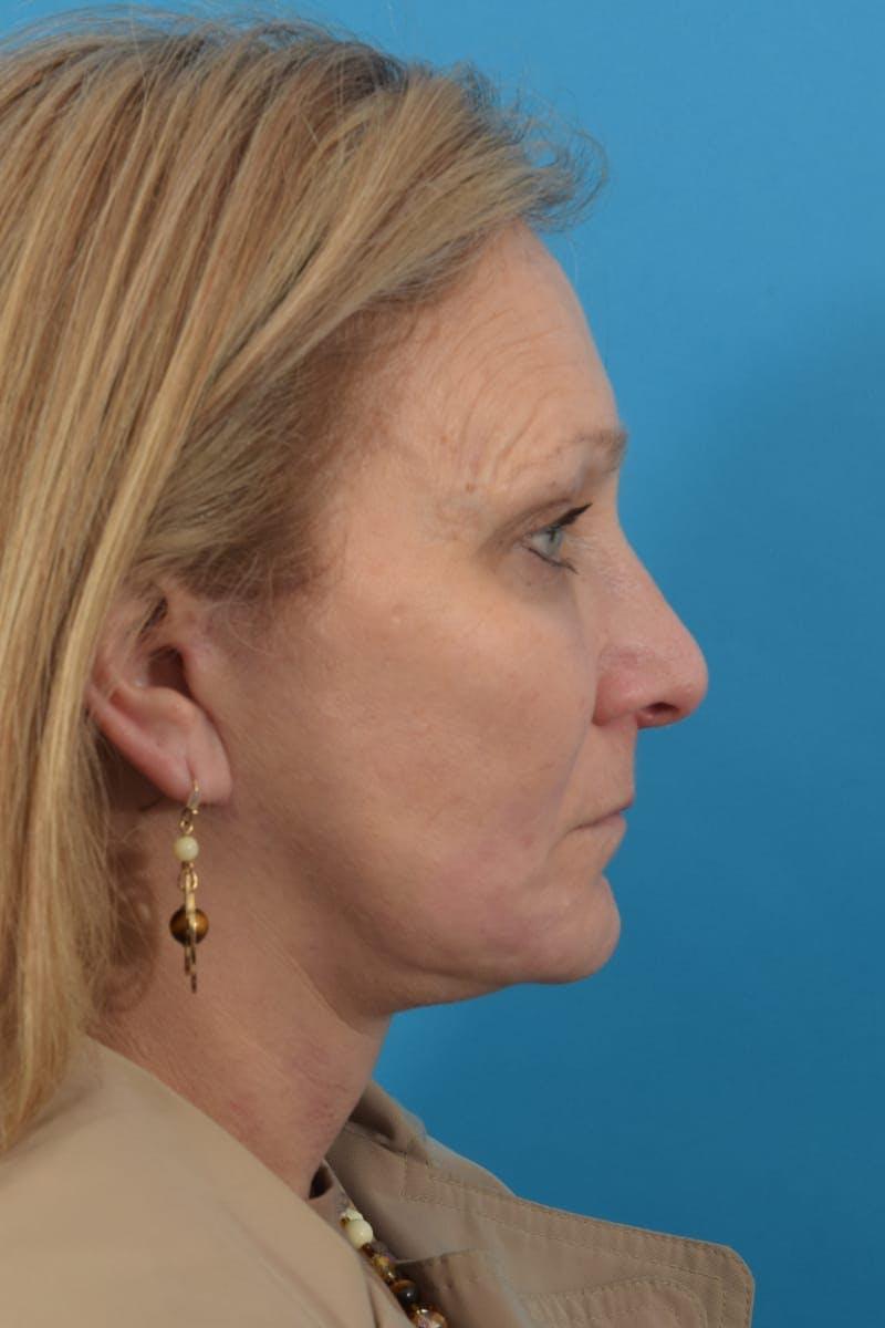 Skin Resurfacing Gallery - Patient 40544092 - Image 5