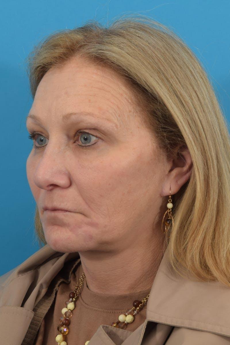 Skin Resurfacing Gallery - Patient 40544092 - Image 7