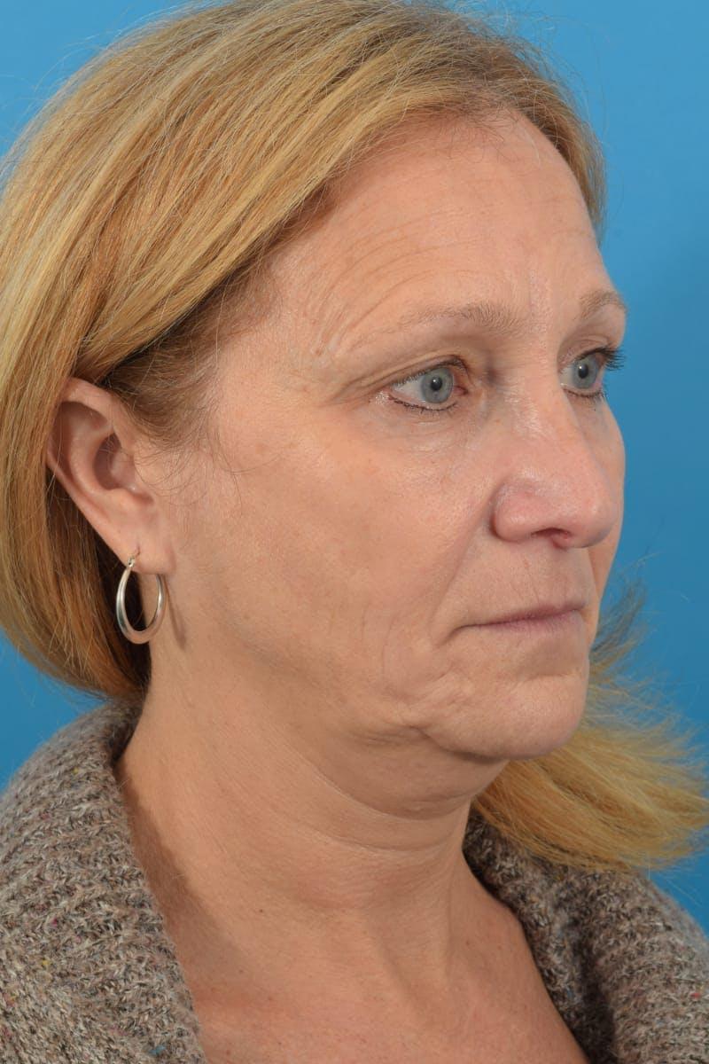 Skin Resurfacing Gallery - Patient 40544092 - Image 4
